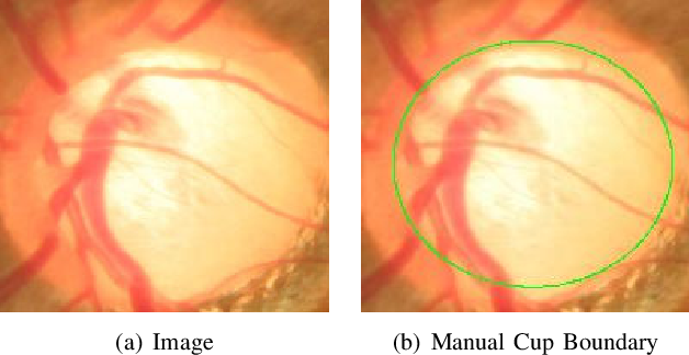 Figure 2 for Sparse Range-constrained Learning and Its Application for Medical Image Grading