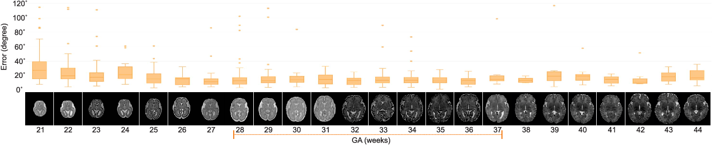 Figure 2 for Real-time Deep Pose Estimation with Geodesic Loss for Image-to-Template Rigid Registration