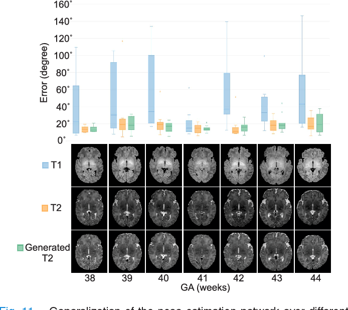 Figure 3 for Real-time Deep Pose Estimation with Geodesic Loss for Image-to-Template Rigid Registration