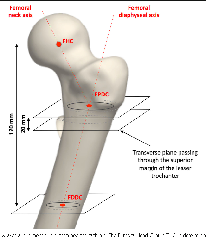 Proximal femoral anatomy and collared stems in hip arthroplasty: is ...