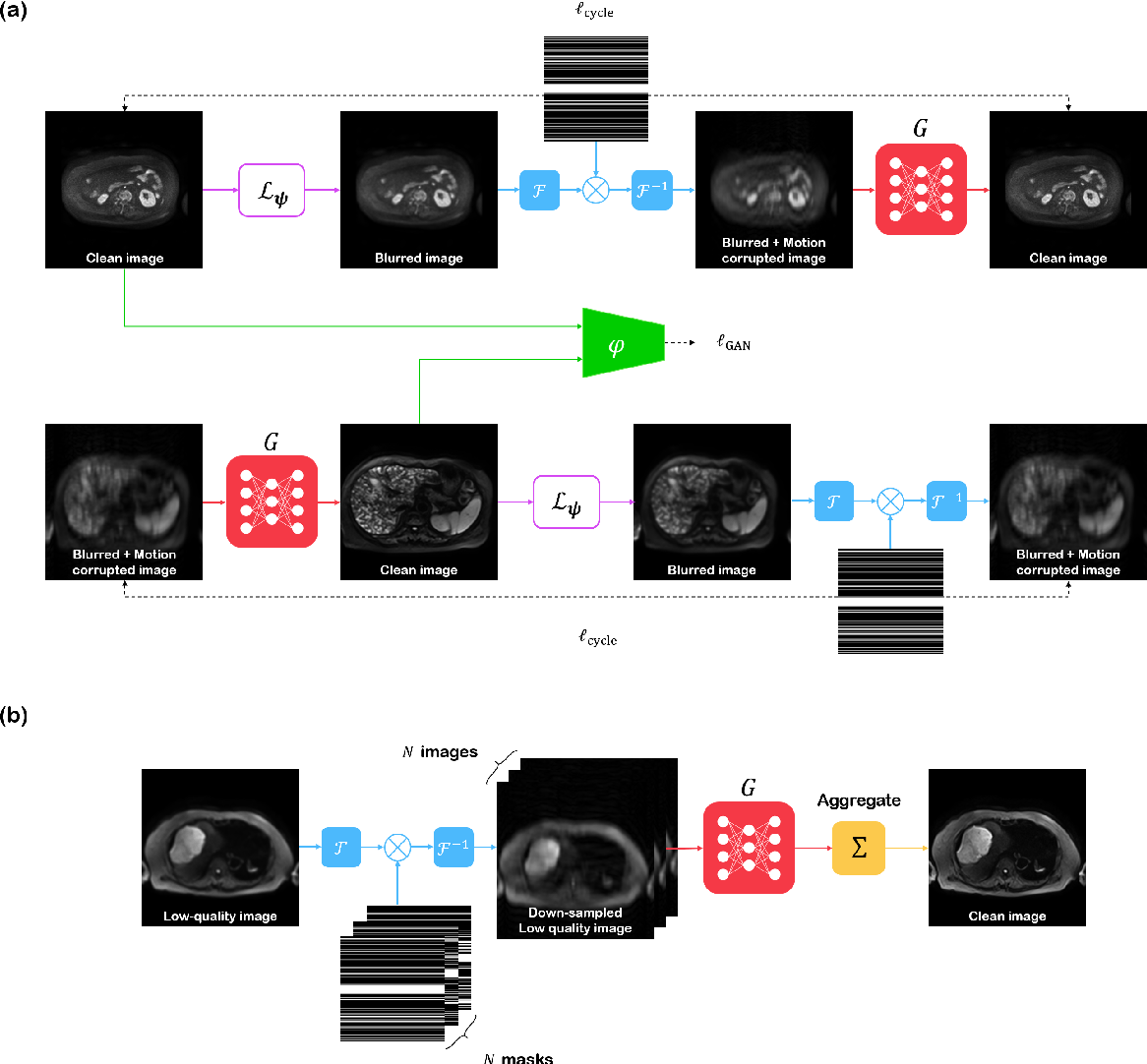 Figure 3 for Simultaneous super-resolution and motion artifact removal in diffusion-weighted MRI using unsupervised deep learning