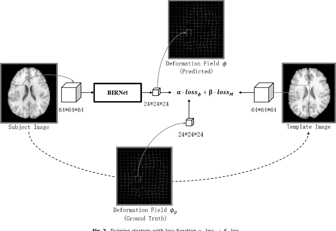 Figure 3 for BIRNet: Brain Image Registration Using Dual-Supervised Fully Convolutional Networks