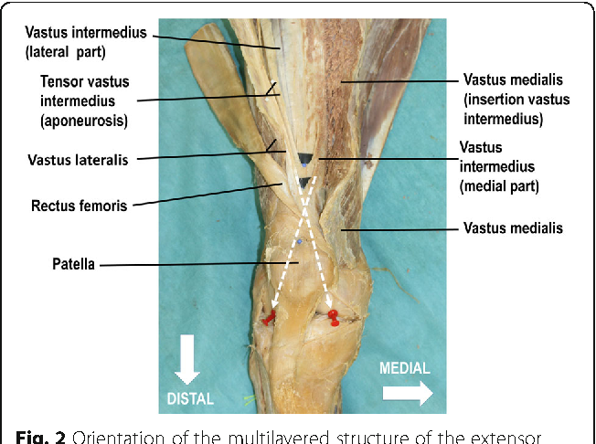 New insight in the architecture of the quadriceps tendon - Semantic ...