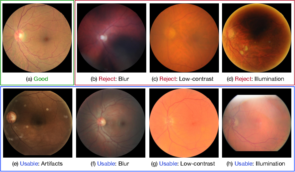 Figure 1 for Evaluation of Retinal Image Quality Assessment Networks in Different Color-spaces