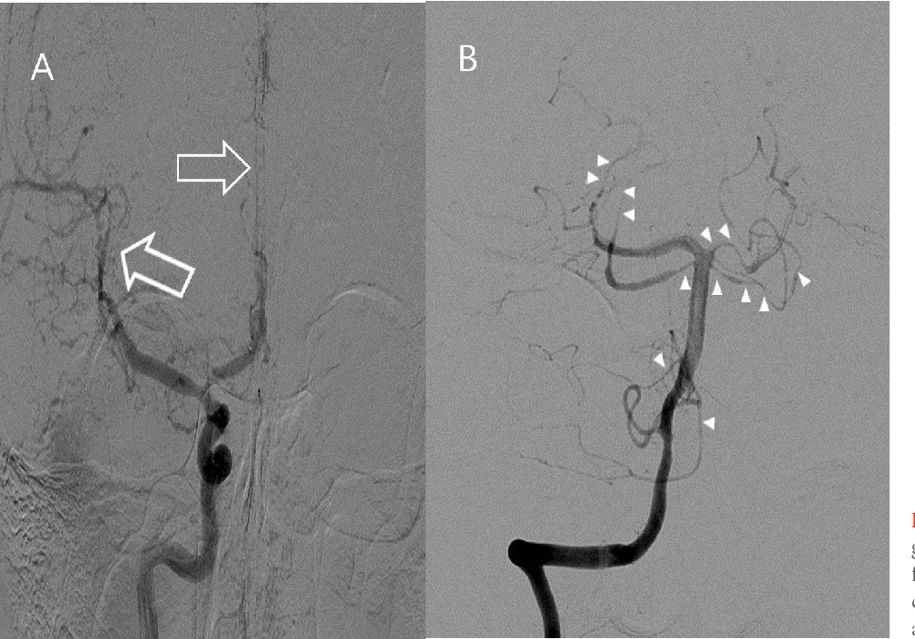 Fig. 2. Transfemoral cerebral angiography 9 days after symptom onset. Multifocal vasospasms are shown in the left carotid (A, arrows) and left vertebral (B, arrowheads) angiograms.