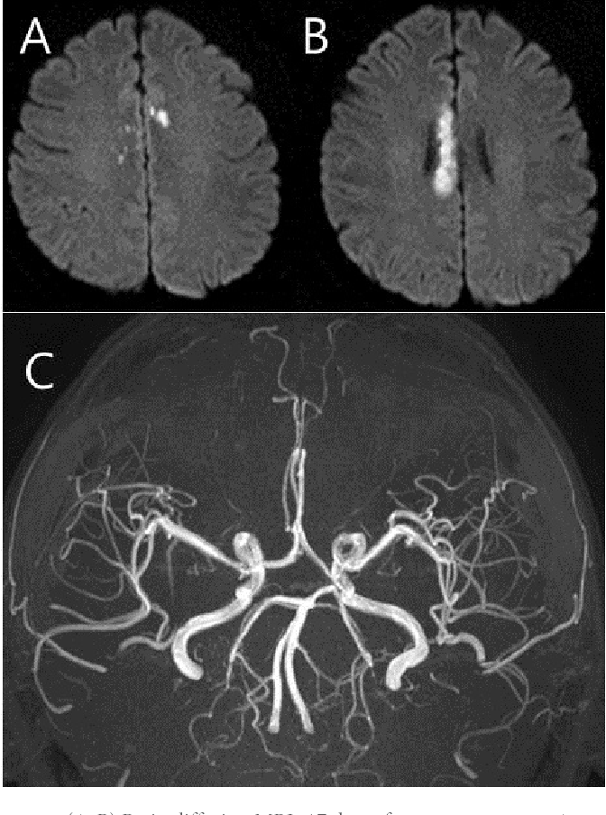 Fig. 4. (A, B) Brain diffusion MRIs 17 days after symptom onset. Acute bilateral multifocal infarctions are shown in the corpus callosum area. (C) MR angiography reveals no vasospasm in any of the intracranial arteries about 1 year after symptom onset.