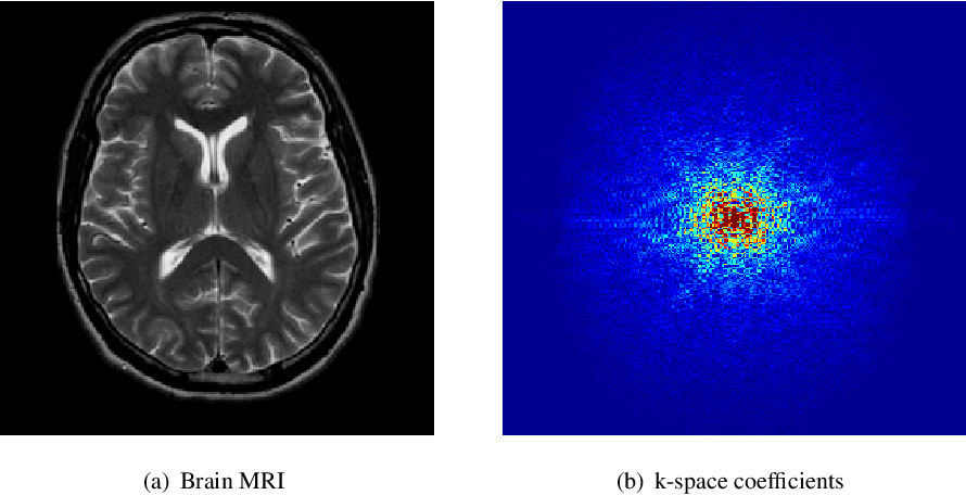 Figure 1 for A Divide-and-Conquer Approach to Compressed Sensing MRI