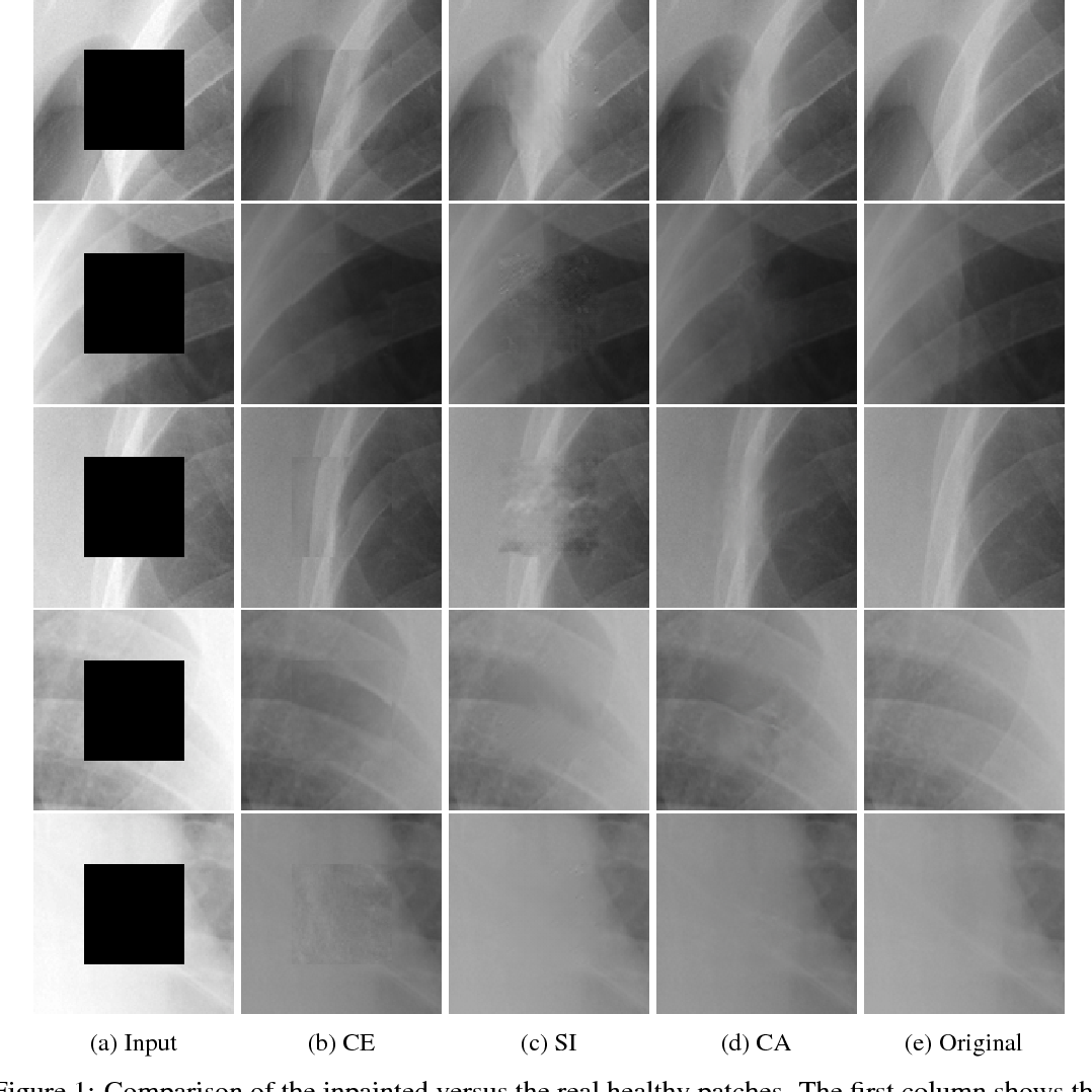 Figure 2 for Chest X-ray Inpainting with Deep Generative Models