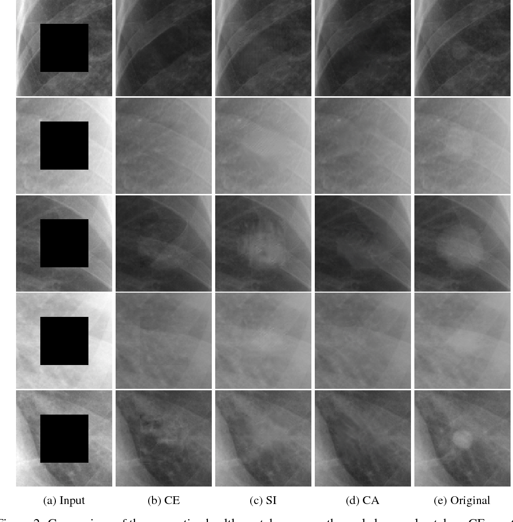 Figure 4 for Chest X-ray Inpainting with Deep Generative Models