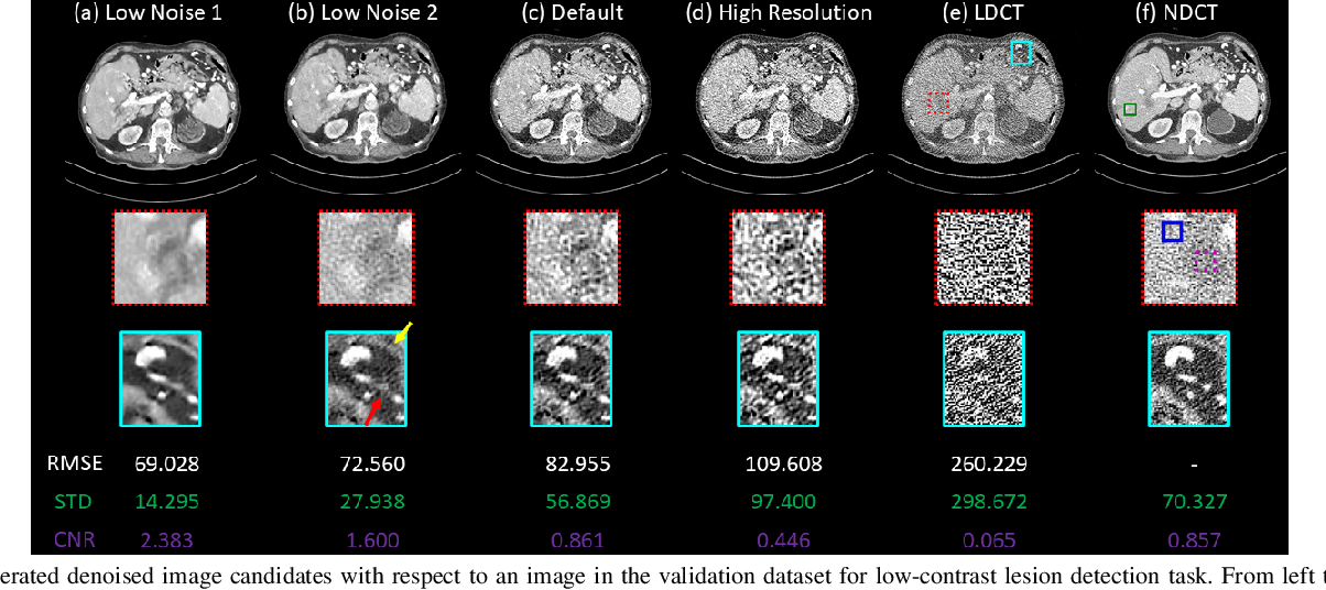 Figure 3 for Deep Interactive Denoiser (DID) for X-Ray Computed Tomography