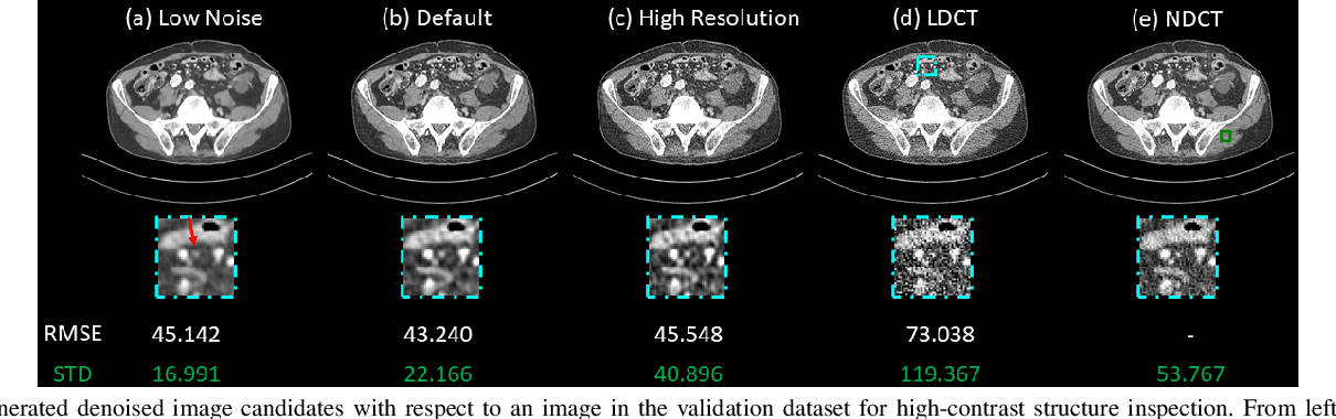 Figure 4 for Deep Interactive Denoiser (DID) for X-Ray Computed Tomography