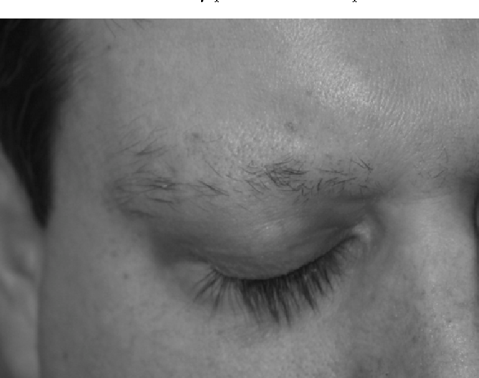 Successful Hair Transplant Of Eyebrow Alopecia Areata Semantic