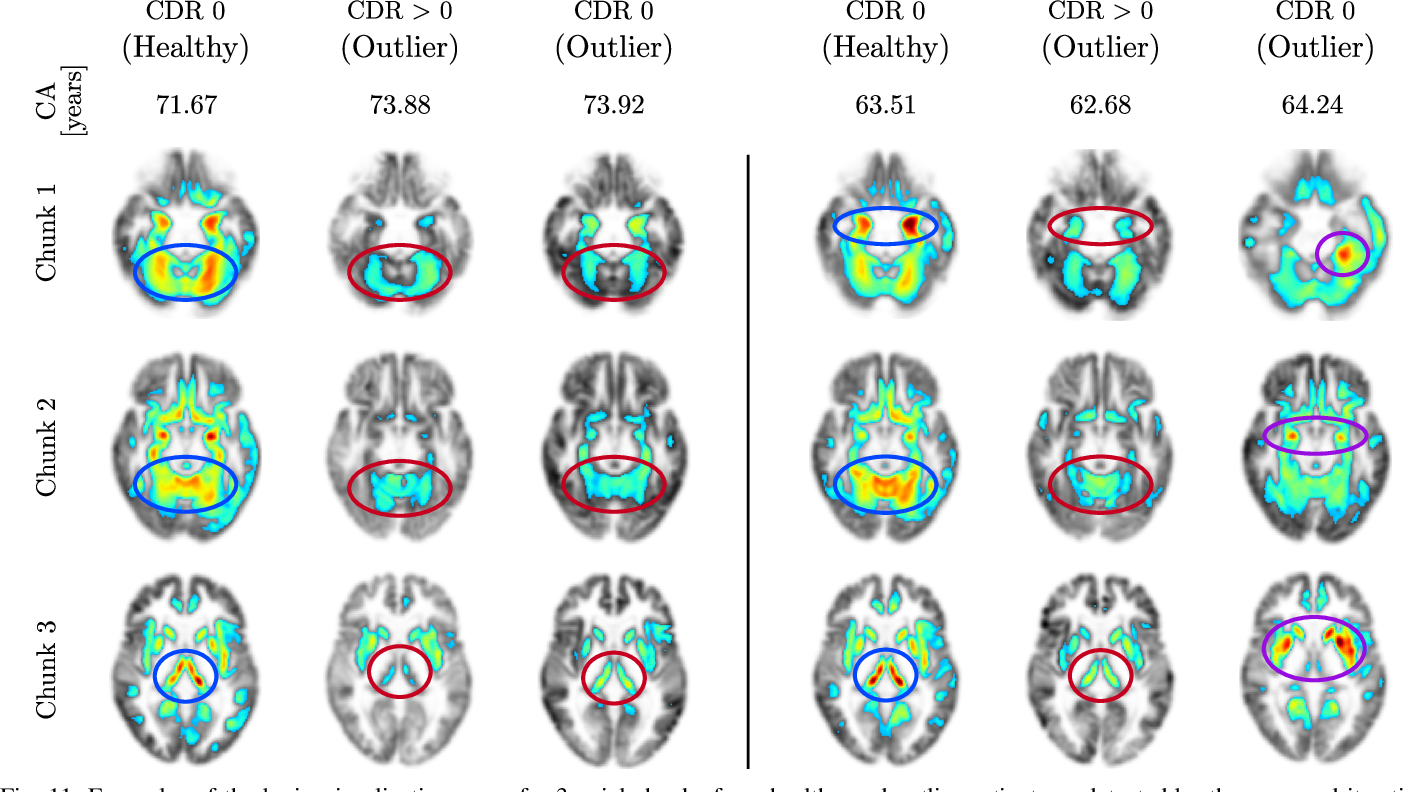 Figure 3 for Age-Net: An MRI-Based Iterative Framework for Biological Age Estimation
