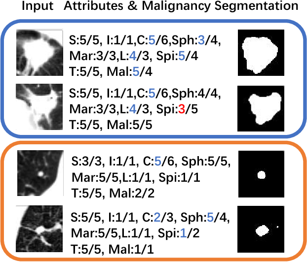 Figure 4 for Joint Learning for Pulmonary Nodule Segmentation, Attributes and Malignancy Prediction