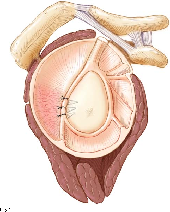 Figure 4 From Recurrent Posterior Shoulder Instability Semantic