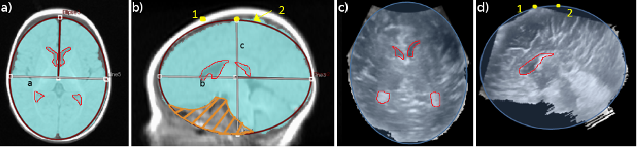 Figure 1 for Dilatation of Lateral Ventricles with Brain Volumes in Infants with 3D Transfontanelle US