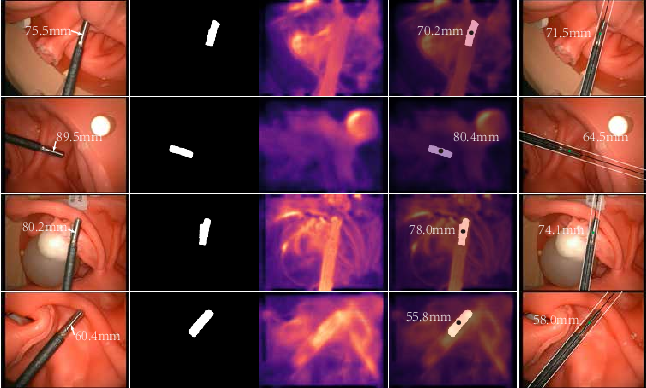 Figure 4 for Data-driven Holistic Framework for Automated Laparoscope Optimal View Control with Learning-based Depth Perception