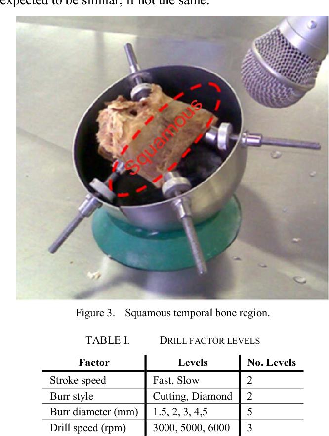 Figure 3. Squamous temporal bone region.