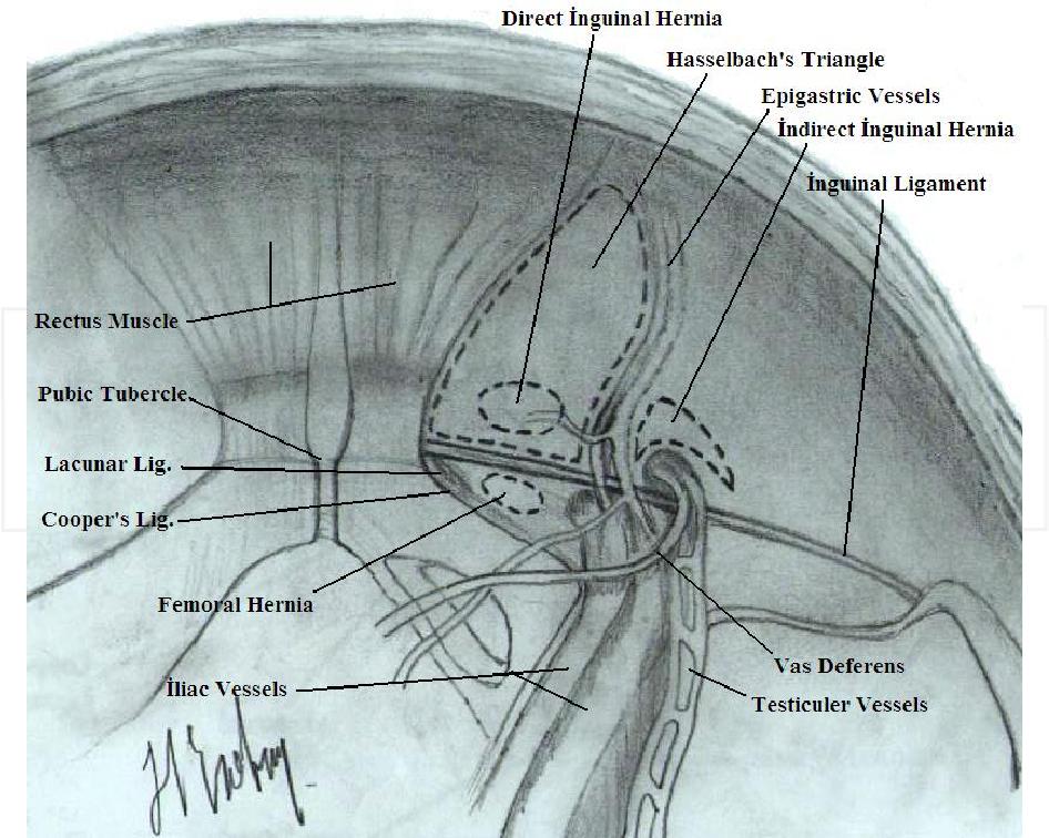 Chapter 2 Groin Hernia Repair in Laparoscopic Era - Semantic Scholar