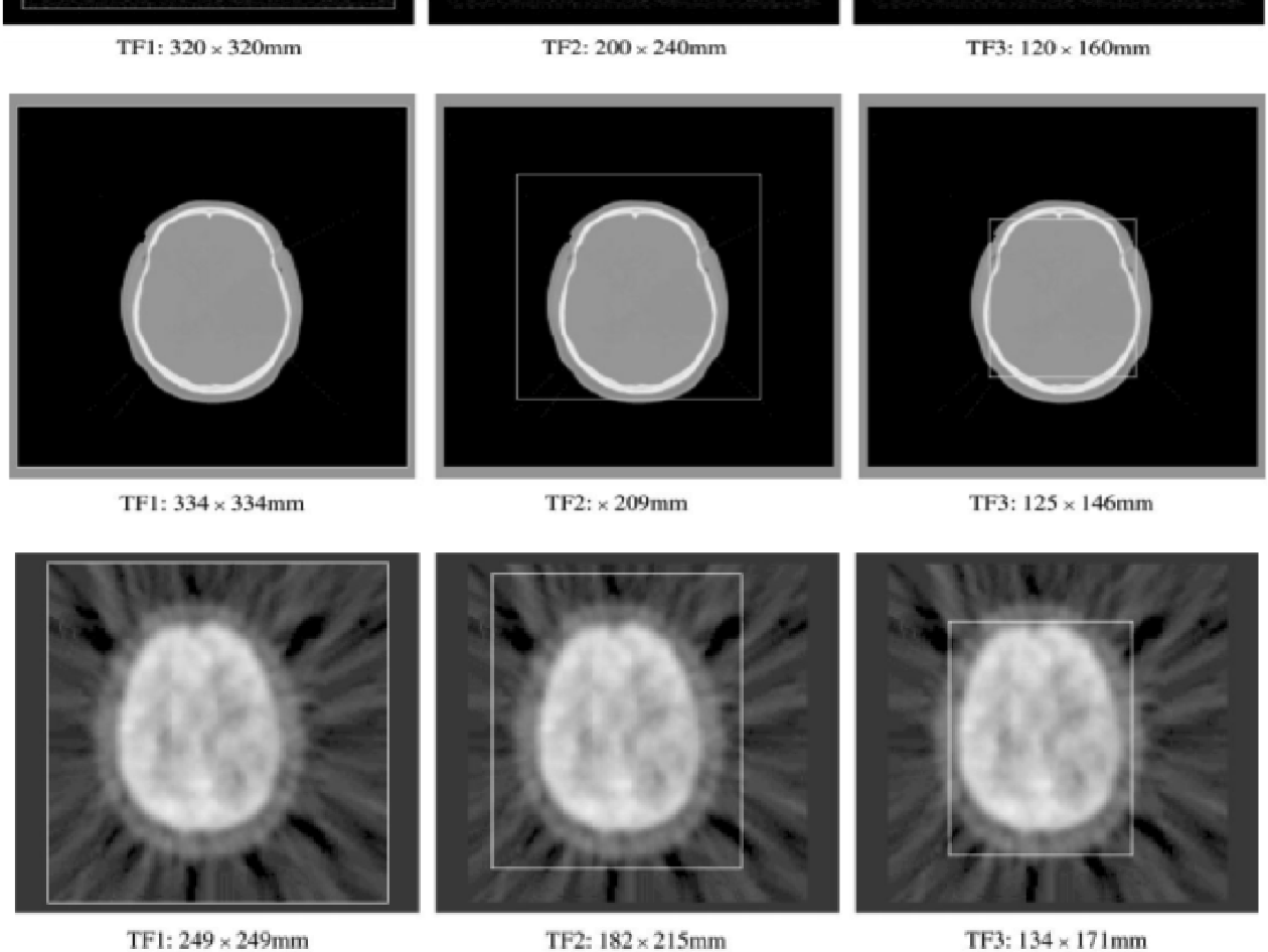 Figure 3 for Validation of Tsallis Entropy In Inter-Modality Neuroimage Registration
