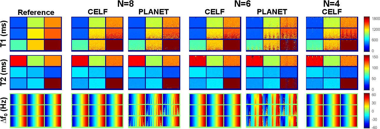 Figure 4 for Constrained Ellipse Fitting for Efficient Parameter Mapping with Phase-cycled bSSFP MRI
