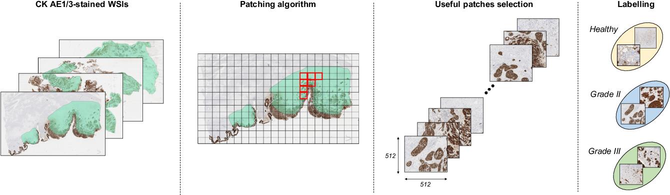 Figure 3 for A Novel Self-Learning Framework for Bladder Cancer Grading Using Histopathological Images