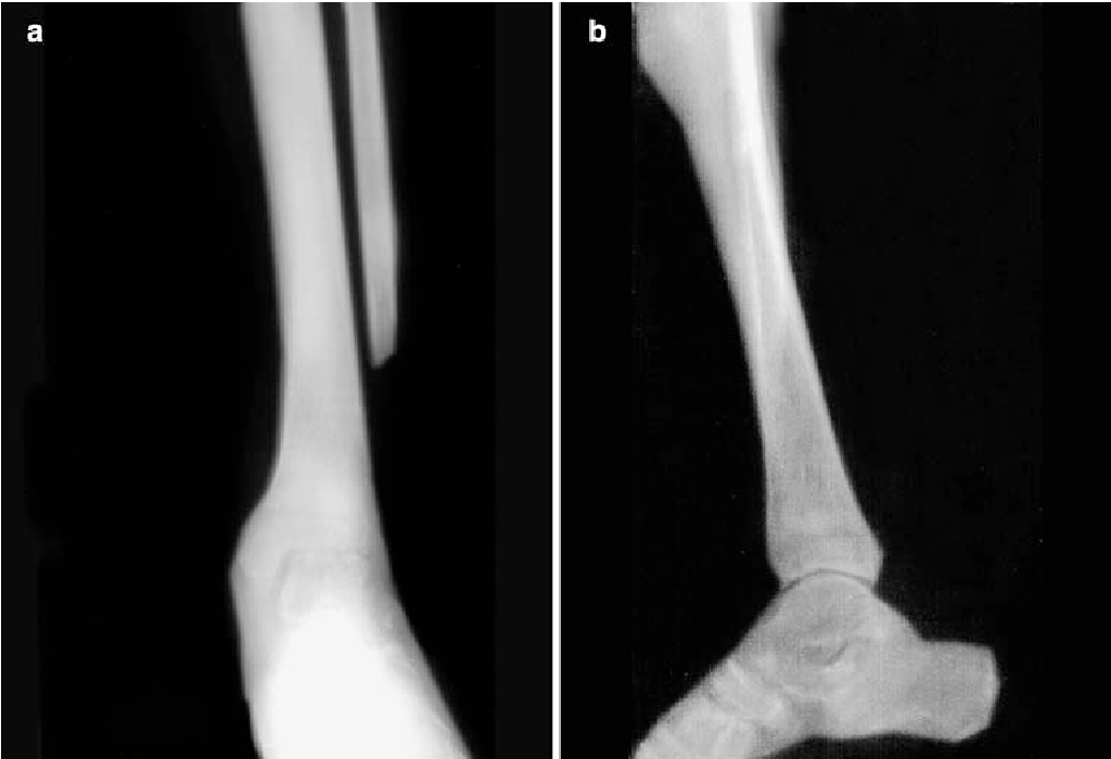 Figure 7 From Dynamic Function Of The Fibula Gait Analysis