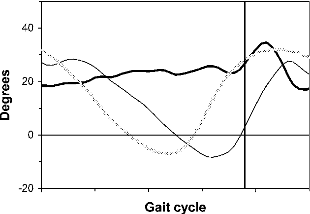 Figure 9 from Dynamic function of the fibula. Gait analysis ...