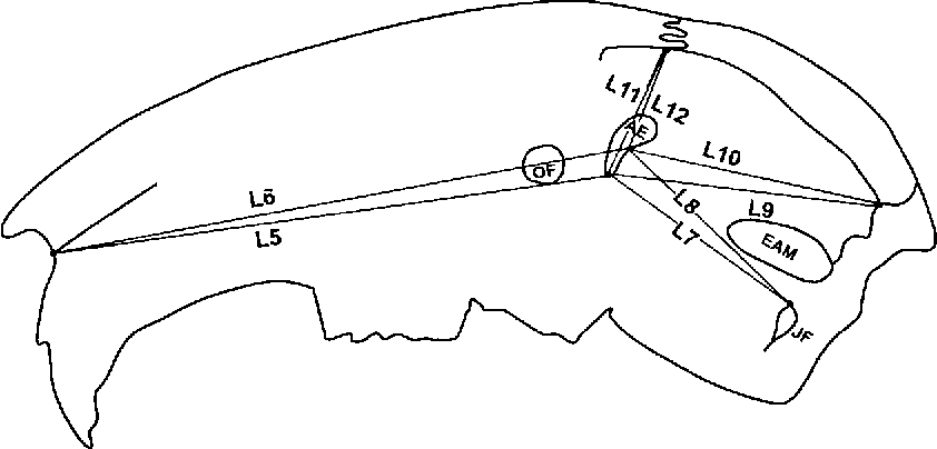 Location Of The Glenoid Fossa After A Period Of Unilateral