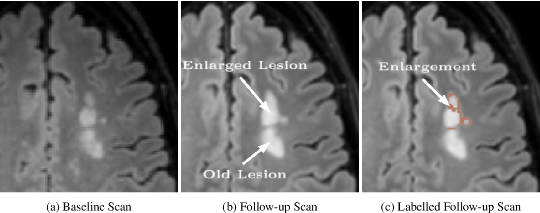 Figure 1 for Multiple Sclerosis Lesion Activity Segmentation with Attention-Guided Two-Path CNNs