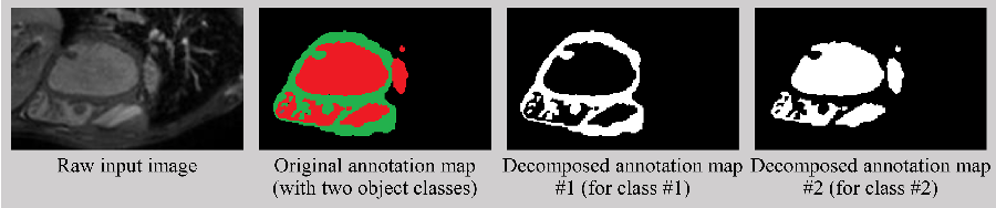 Figure 1 for Decompose-and-Integrate Learning for Multi-class Segmentation in Medical Images