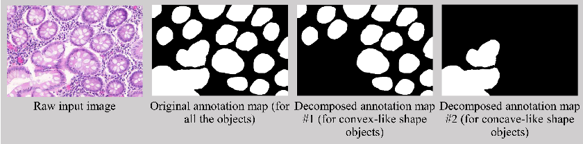 Figure 3 for Decompose-and-Integrate Learning for Multi-class Segmentation in Medical Images
