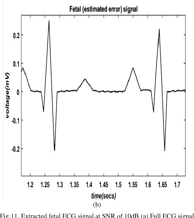 PDF] Analysis of Abdominal ECG Signal for Fetal Heart Rate
