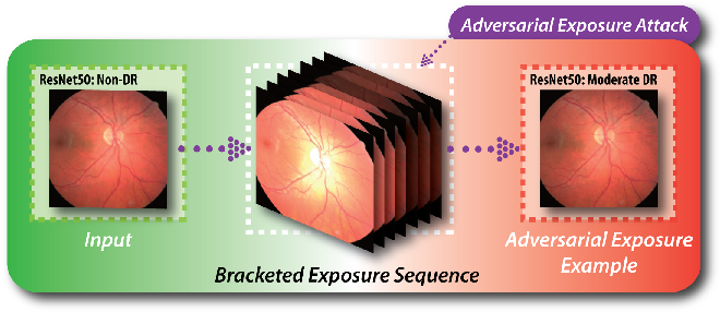 Figure 1 for Adversarial Exposure Attack on Diabetic Retinopathy Imagery