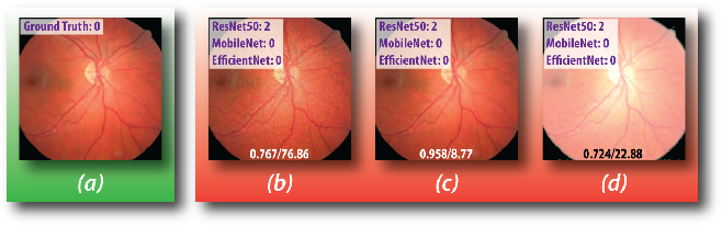 Figure 3 for Adversarial Exposure Attack on Diabetic Retinopathy Imagery
