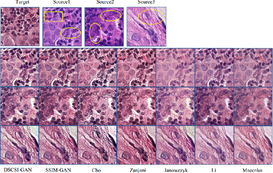 Figure 2 for Stain Style Transfer of Histopathology Images Via Structure-Preserved Generative Learning