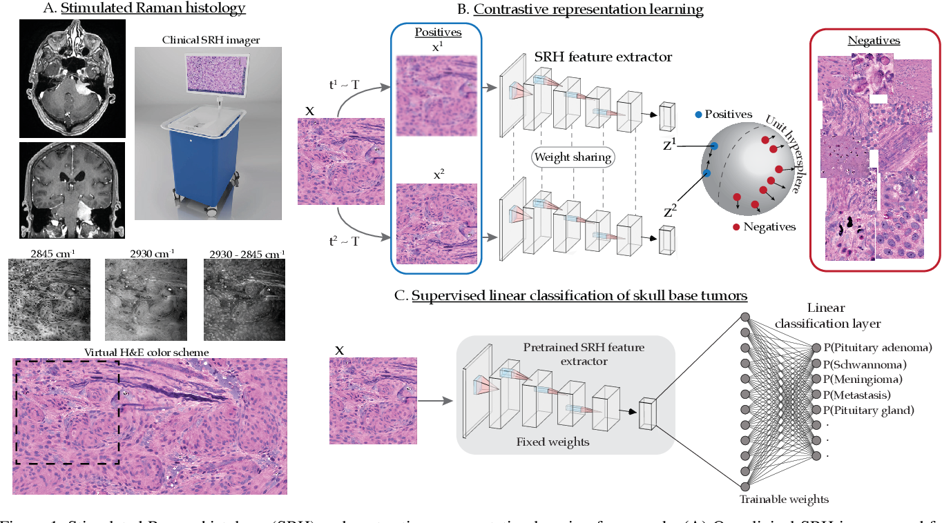 Figure 1 for Contrastive Representation Learning for Rapid Intraoperative Diagnosis of Skull Base Tumors Imaged Using Stimulated Raman Histology
