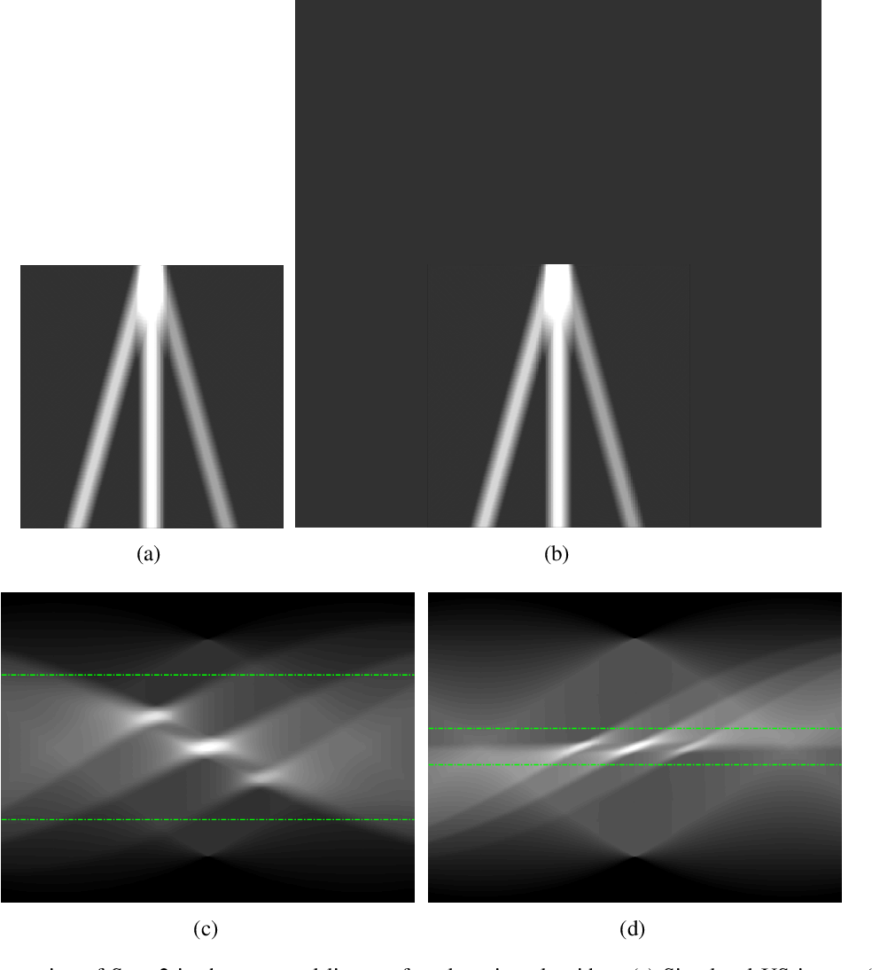 Figure 3 for Line Artefact Quantification in Lung Ultrasound Images of COVID-19 Patients via Non-Convex Regularisation