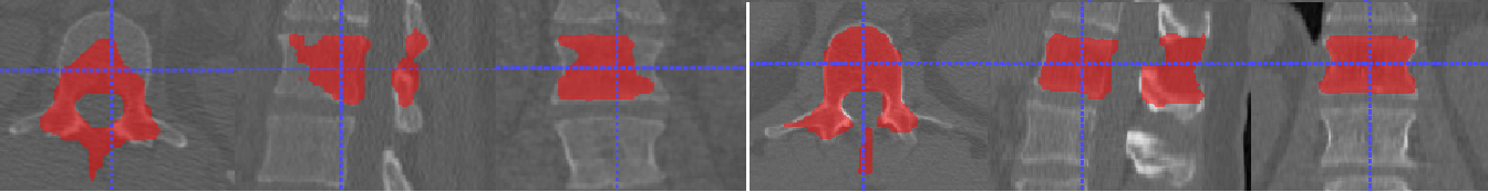 Figure 4 for Accurately identifying vertebral levels in large datasets