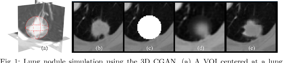 Figure 1 for CT-Realistic Lung Nodule Simulation from 3D Conditional Generative Adversarial Networks for Robust Lung Segmentation