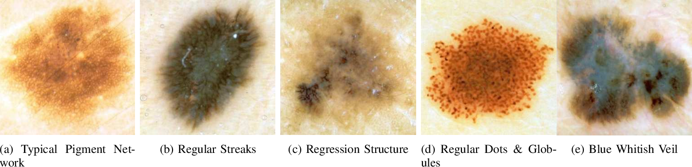 Figure 1 for On Interpretability of Deep Learning based Skin Lesion Classifiers using Concept Activation Vectors