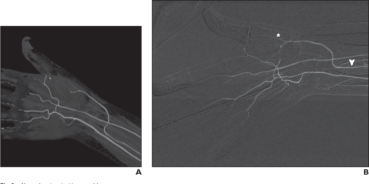 CT angiography of the upper extremity arterial system: Part 1 ...