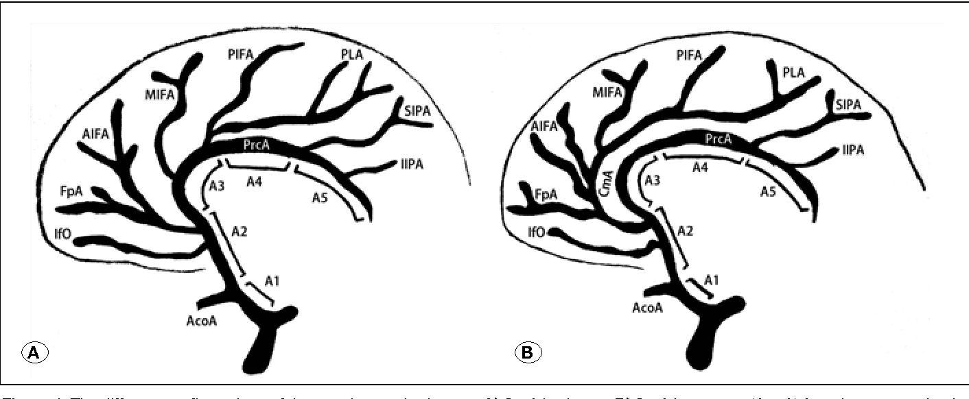 Review of the Anatomy of the Distal Anterior Cerebral Artery and Its ...