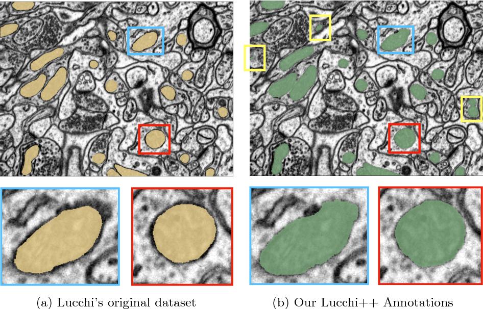 Figure 1 for Fast Mitochondria Segmentation for Connectomics