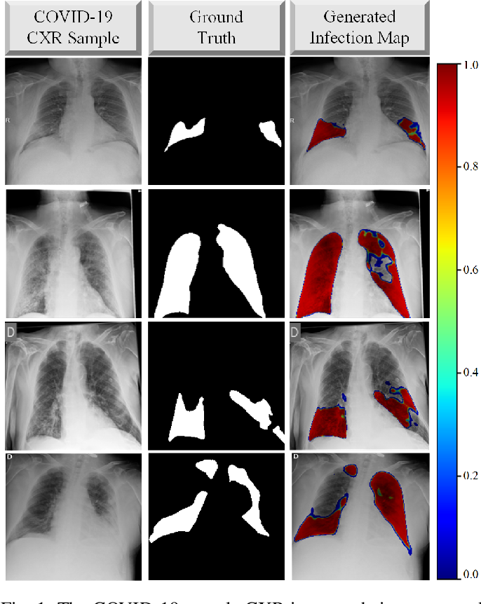 Figure 1 for COVID-19 Infection Map Generation and Detection from Chest X-Ray Images