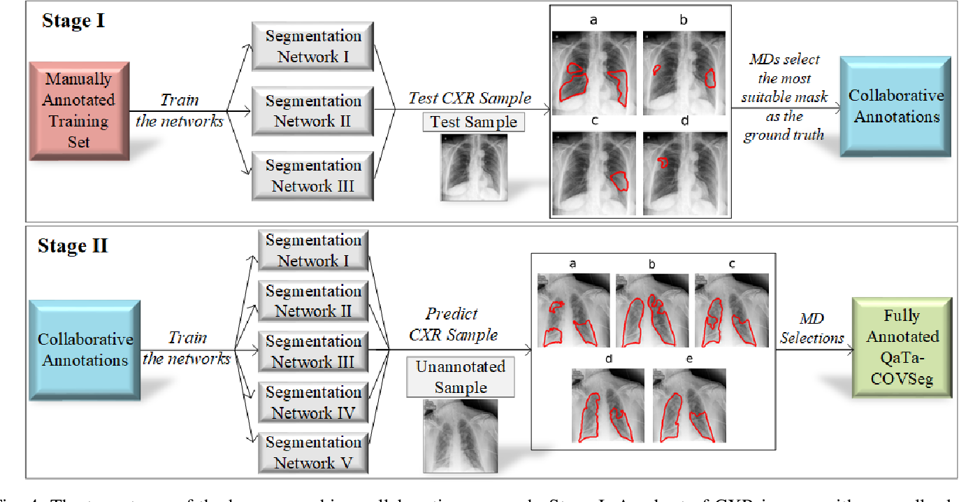 Figure 4 for COVID-19 Infection Map Generation and Detection from Chest X-Ray Images
