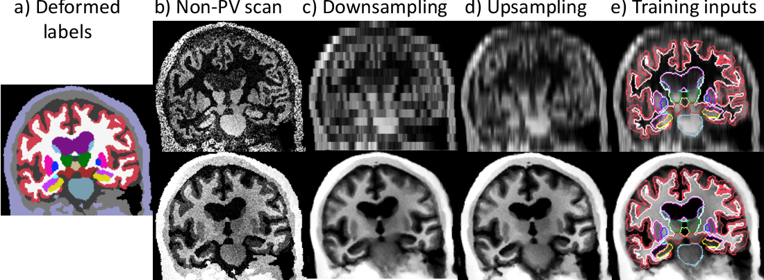 Figure 1 for Partial Volume Segmentation of Brain MRI Scans of any Resolution and Contrast
