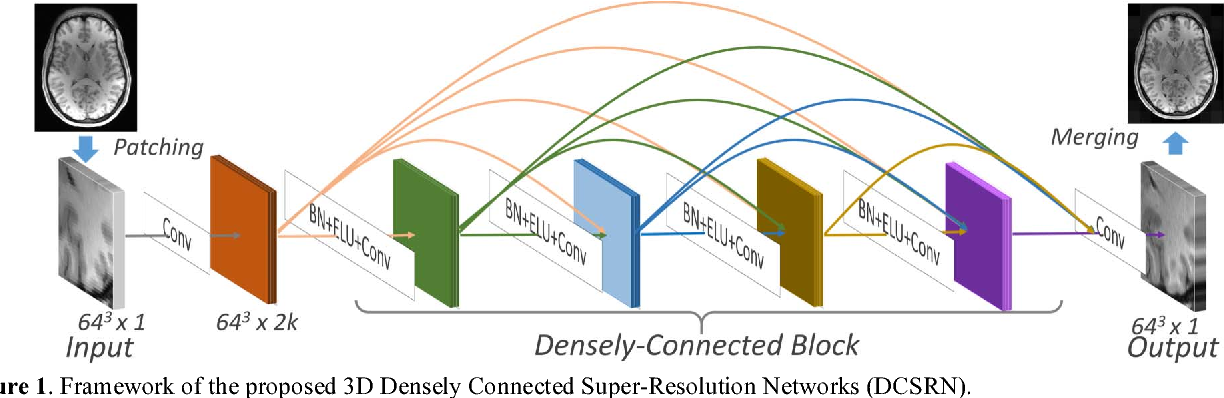 Figure 1 for Brain MRI Super Resolution Using 3D Deep Densely Connected Neural Networks