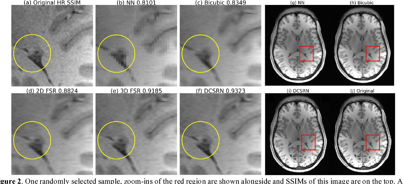 Figure 3 for Brain MRI Super Resolution Using 3D Deep Densely Connected Neural Networks