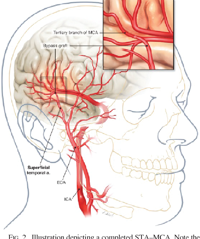 Superficial temporal artery to middle cerebral artery bypass: past ...